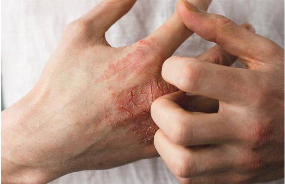 حقایق باورنکردنی که باید برای مقابله با خشکی پوست بدانیم
